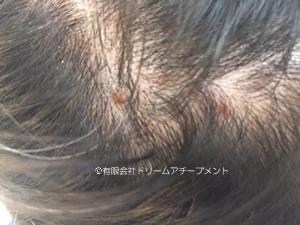 頭皮に吹き出物があるとき、かつらは被れますか?