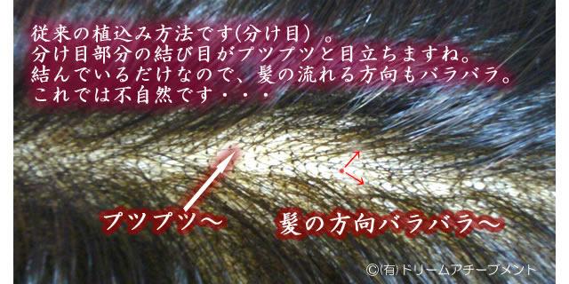 かつらの髪 一般的な植え方