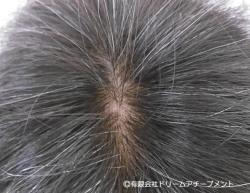 自分の髪(自毛・地毛)使用医療用かつら